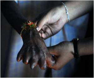 Leprosy Incidence in India Reports 50 Percent and Counting, Globally