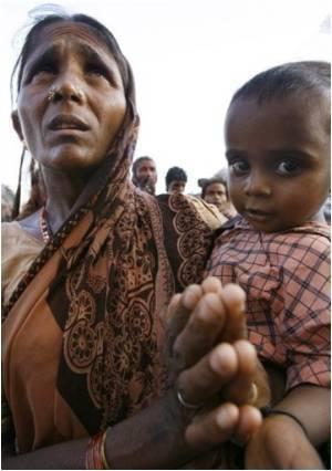 Chickenpox Virus Stalking Uttar Pradesh