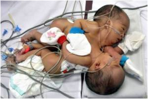'Complex' Surgery Awaits Indonesia's Conjoined Twins