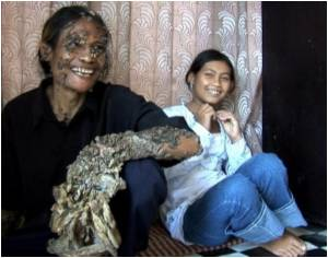 Doctors Remove Six Kilos of Warts from 'Tree Man's' Body