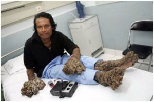 'Tree Man' Back in Hospital To Remove Rapidly Growing Warts