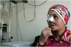 Jordan's Aid Group Offers Fresh Lease Of Life To Maimed Iraqis