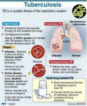 Newer, More Effective Drugs Needed to Treat Multidrug-resistant TB