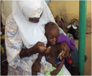 Aid Group Helps Niger Kids Fight Malnourishment Amid Food Crisis