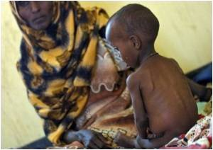 Malnourished Children Not Benefited by Food Aid: MSF