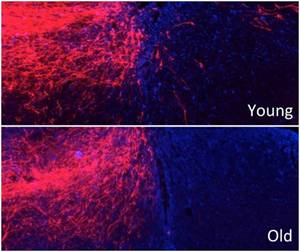 Aging Diminishes the Regeneration of Spinal Cord After Injury