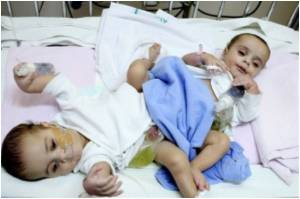 Conjoined Twins of Egypt Separated in Saudi Hospital