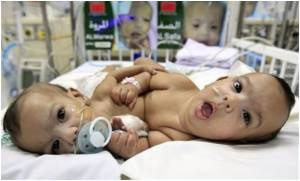 Morocco's Siamese Twins Separated in Saudi