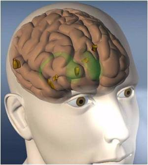 Synchronizing of Brain Regions Necessary to Allow a Person to Pay Attention