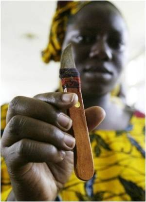 Offering Hope For Victims Of Female Genital Mutilation Comes Reconstructive Surgery