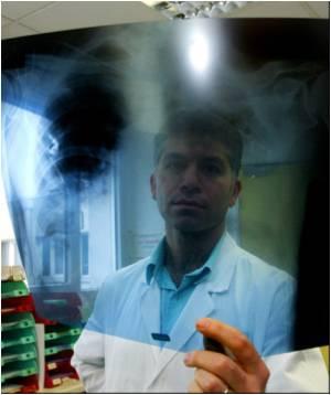 Second Man Dies from Legionnaires' Disease in Spain