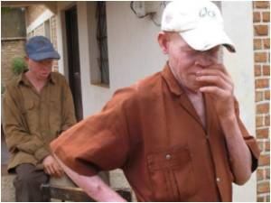 Witch Doctors Butcher Tanzania's Albinos for 'Lucky Potions'