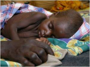 Diarrhoea Kills Two Million Children A Year Despite Easy Treatment