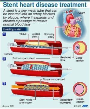 Drug-Coated Stents Lower Heart Attack Risk In Cardiac Patients