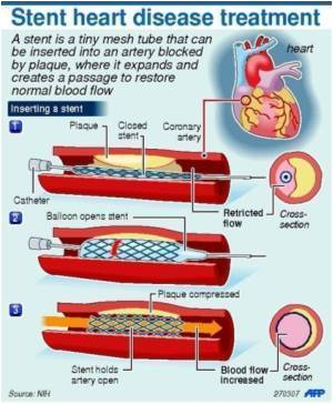 Benefits in Selective Use of Drug-eluting Stents