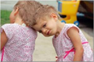 Conjoined Twins Separation Surgery in US Called Off