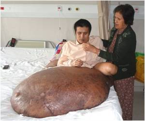 Vietnamese Man's 90kg Tumour Removed