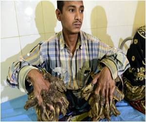 Bangladesh's 'Tree Man' Will Undergo Surgery to Remove Warts