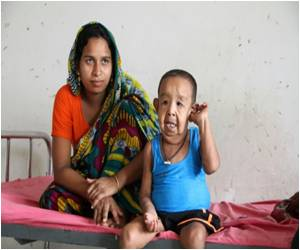 Four-Year-Old Bangladeshi Boy With 'Old Man' Illness Baffles Doctors