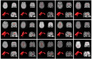 Software can Routinely Track Brain Atrophy in Multiple Sclerosis