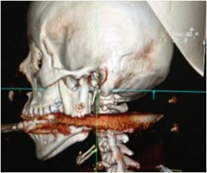 Spear Gun Shoots Brazilian Woman in Mouth