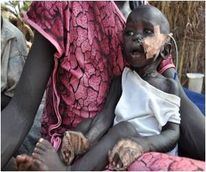 Risk of Stunting in 450 Million Children Due to Malnutrition