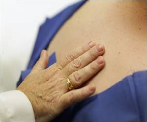 Having More Than 11 Moles on the Right Arm Indicates Skin Cancer Risk