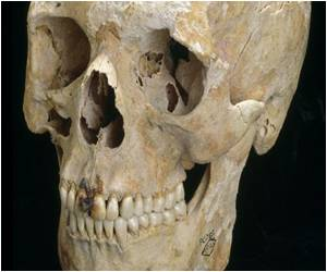 Oral Health in Britain Better During Roman Era
