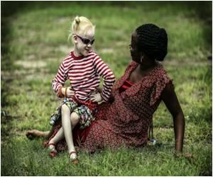 African Music Legend Salif Keita Says Africa Albino Attacks 'Unacceptable'