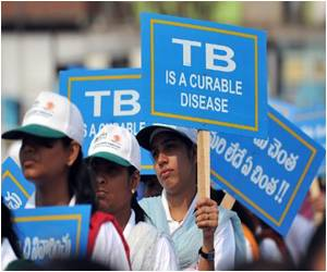 Majority Eastern Europe Still Affected by Tuberculosis