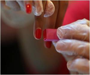 France Gives Thumbs Up to Home HIV Tests