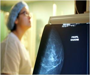 Post Cancer Operation Breast Tissue Successfully Regrown