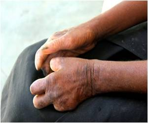 Delhi Sees Decline in Leprosy Rates