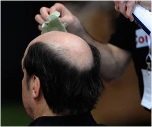 Link Between Baldness and Clogged Artery Risk Identified