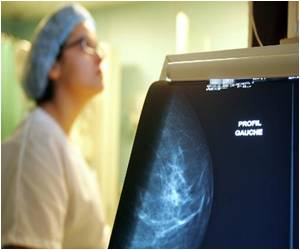 Women With a Specific Gene Mutation Face Higher Risk of Dying from a Type of Breast Cancer