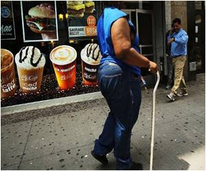 Rates of Adult Obesity in US 'Unacceptably High': Report