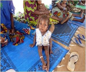Children Suffering from Malnutrition May Not Always Need Antibiotics: Study