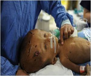 Indian Doctors Reconstruct Baby's Head Swollen from Rare Disorder
