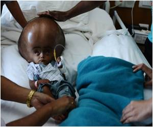 Baby's Swollen Head Reconstructed by Indian Surgeons