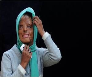 Going On To Become a TV Millionaire Was An Indian Acid Attack Victim