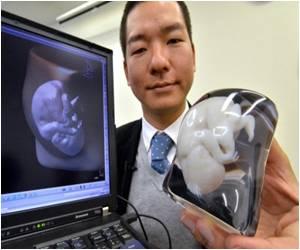 3 Dimensional Model of Foetus