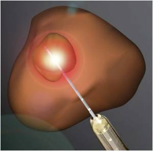 Focal Laser Ablation Becomes Viable Treatment for Prostate Cancer