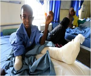 Battlefield Surgery Skills of Doctors Saves Survivors of Boko Haram