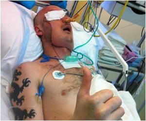 Poland's First Life-saving Face Transplant