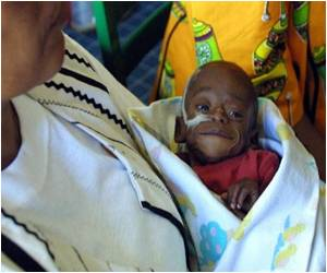 S. Africa Health Officials Agonise Over Rare Birth Defects