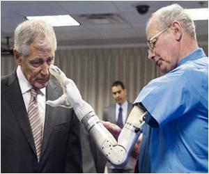 US Regulators Give Nod for Advanced Prosthetic Arm