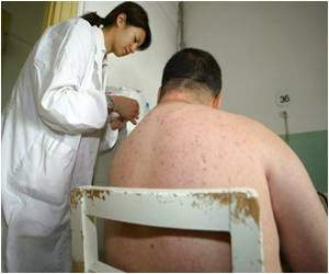 Bacteria That Causes Obesity Discovered