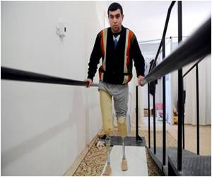 New Prosthetic Limbs Aid Syrians in Long Walk After War