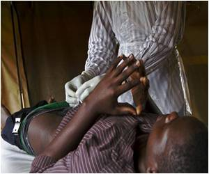 Rubber Band Circumcision Tested in Uganda