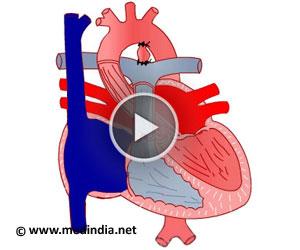 Ventricular Septal Defect